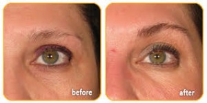Ultherapy_eyes