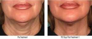 Ultherapy_neck