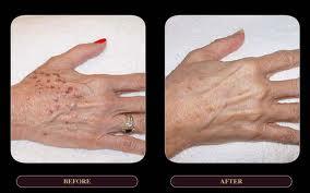 hands_ipl