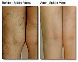 spider_veins