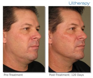 ultherapy-0058d_0day-120day-1tx_beforeandafter_full