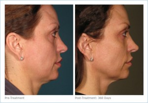 ultherapy_full_face_2-2